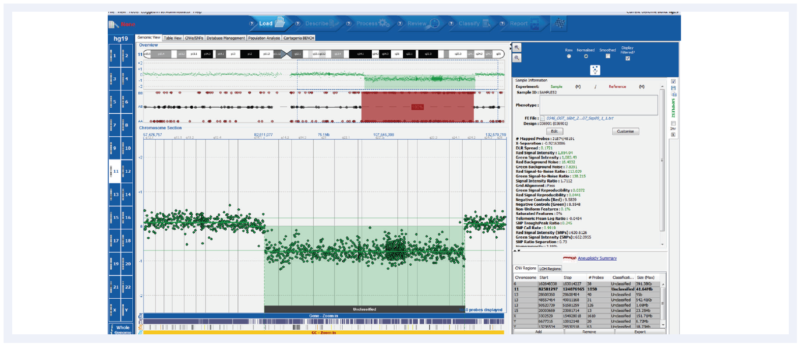 Figure 3. Shown here is a CLL research sample run on the CytoSure Consortium Cancer +SNP array (8x60k) with a deletion and corresponding LOH. CytoSure Interpret offers an intuitive user interface for easy interpretation of genetic findings. Samples kindly provided by Dr Jon Strefford, University of Southampton.