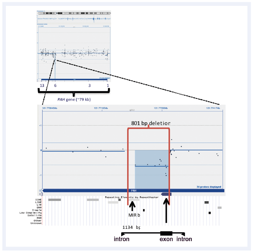 Figure 2: CytoSure Interpret Software enables easy detection and visualisation of small aberrations. Shown here is a 801bp micro-aberration causing partial deletion of exon 6 in the PAH gene (which in conjunction with a point mutation is causative of phenlyketonuria). Data kindly provided by Madhuri Hegde, Ph.D., FACMG, Emory University.