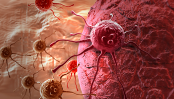 OGT expands NGS cancer panel offering Listing Image